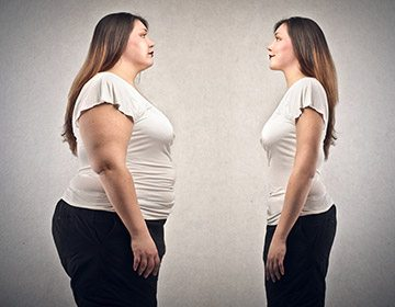 What type of weight loss surgery is right for me picture 9